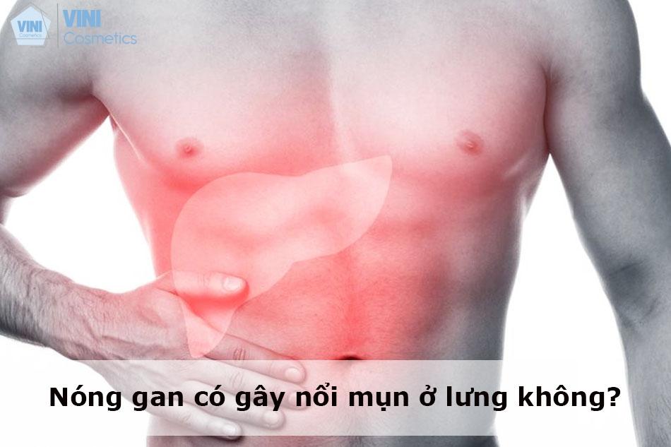 Nóng gan có gây nổi mụn ở lưng không?
