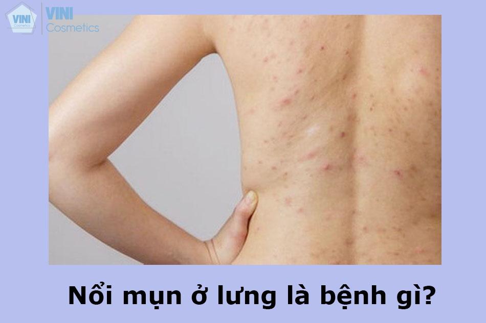 Nổi mụn ở lưng là bệnh gì?