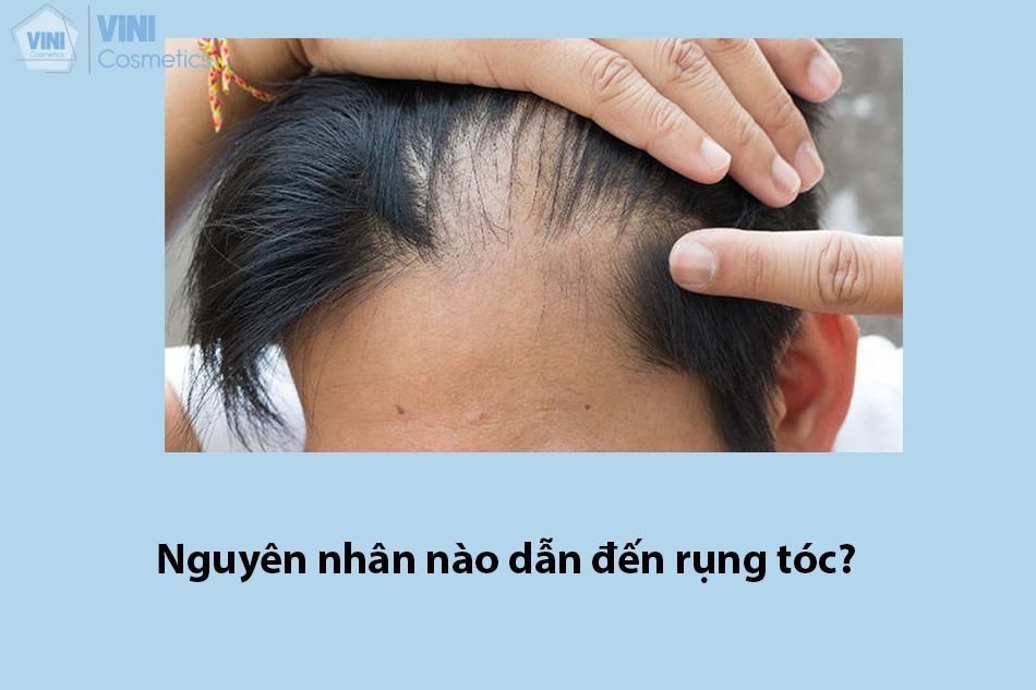 Nguyên nhân nào dẫn đến rụng tóc